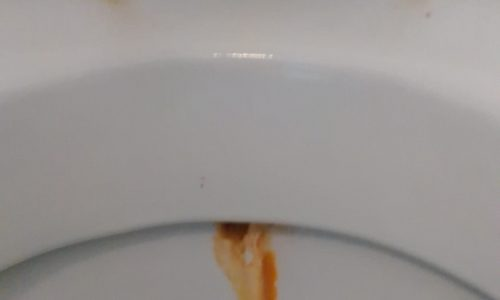 dirty toilet seat